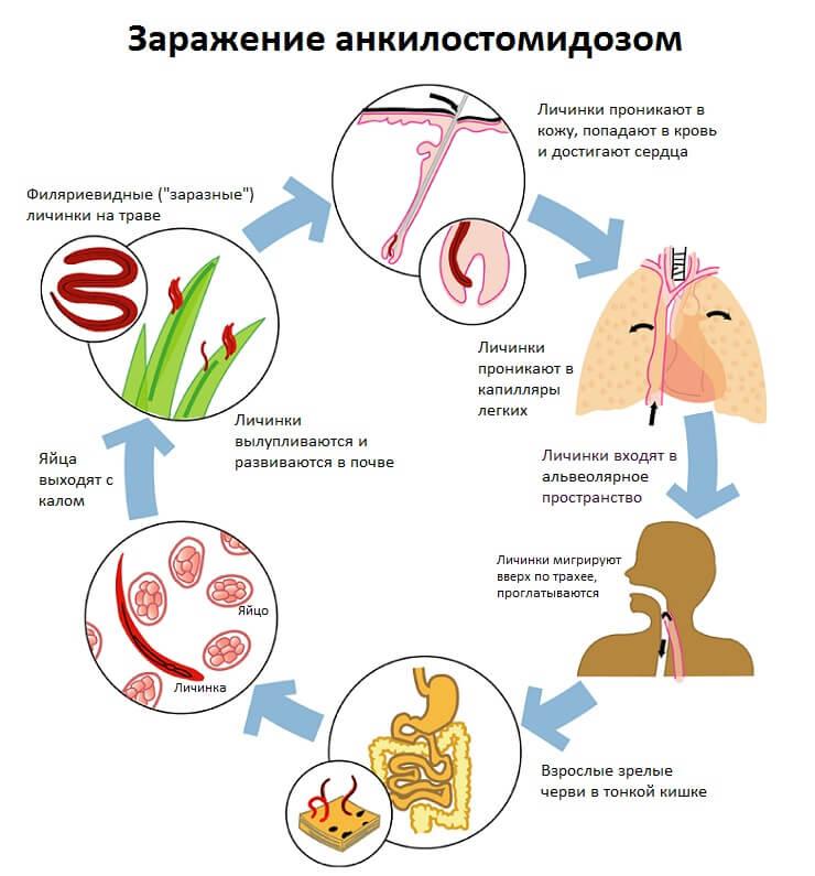Схема заражения анкилостомидозом
