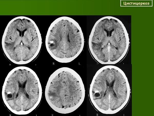 Цистицеркоз на снимке мозга