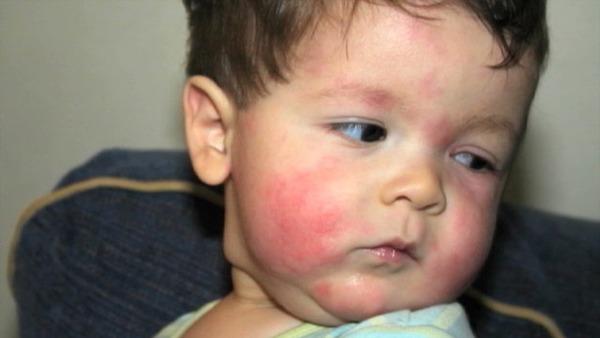 Аллергия может быть признаком гельминтоза
