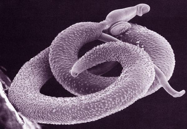 Опасность гельминтоза