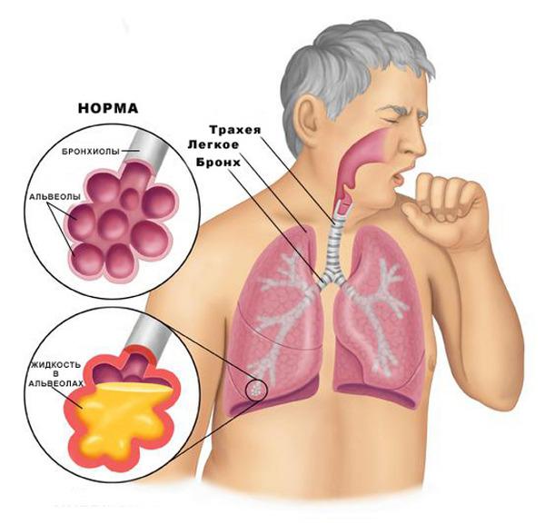 Пневмония при филяриозе