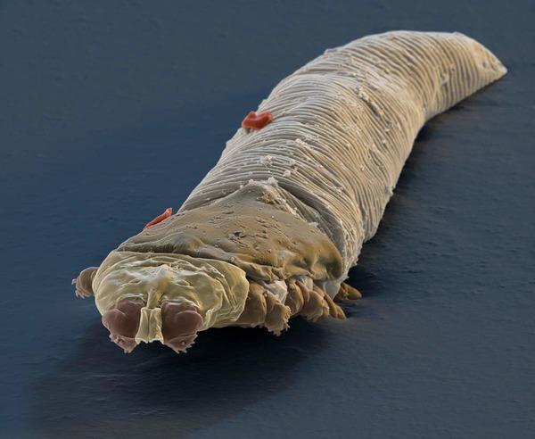 Кожный паразит при увеличении