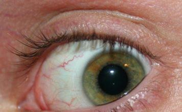 Токсокароз глаза