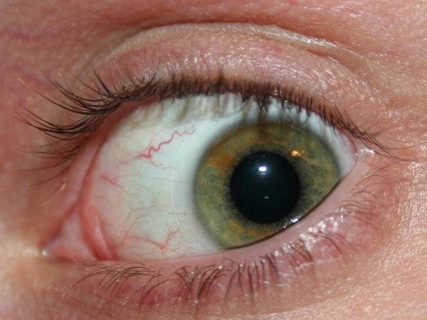 Иногда личинки токсокар могут поражать глаза