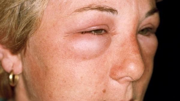 Опухшие глаза при трихинеллезе