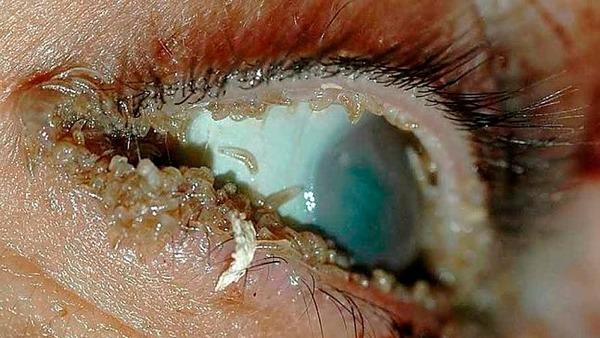 Заражение слизистой глаза