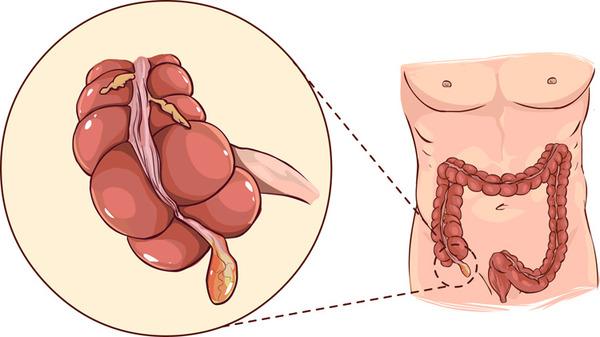 Аппендицит может быть следствием гельминтоза