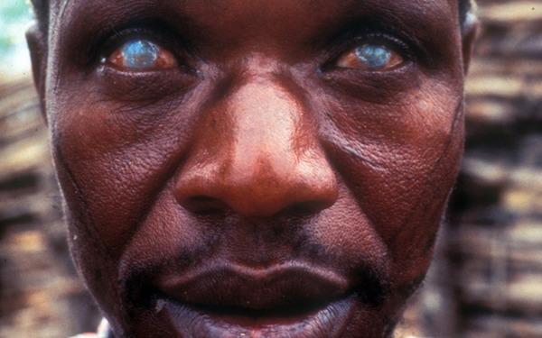 Утрата зрения вследствие филяриоза