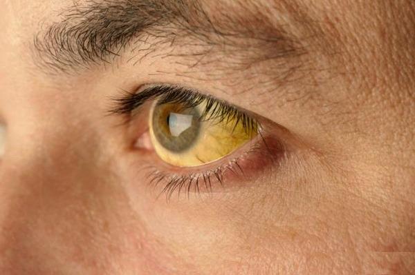 Желтые склеры при заражении