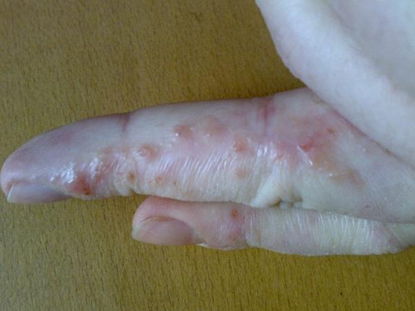Стафилококковая инфекция на коже