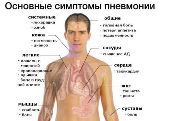 Вызванная ауреус пневмония