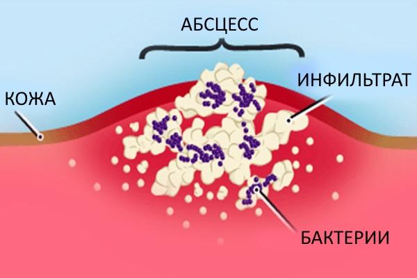 Стафилококковая инфекция кожи