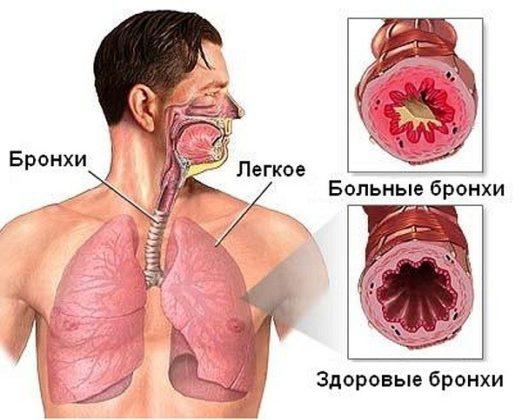Симптомы острого бронхита у взрослого человека