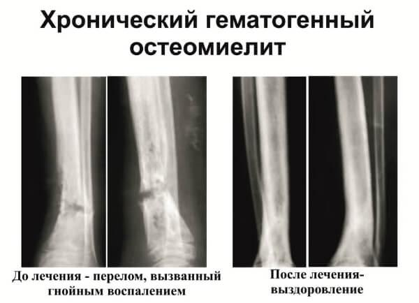 Ауреус - наиболее частый возбудитель остеомиелита
