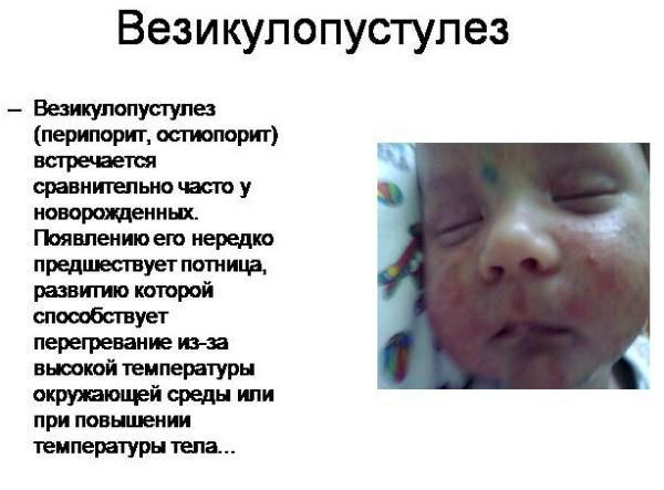 Кожные стафилококковые инфекции новорожденных