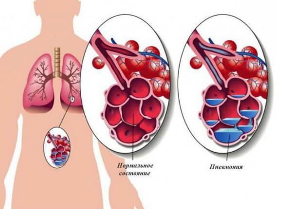 Поражение легких при пневмонии
