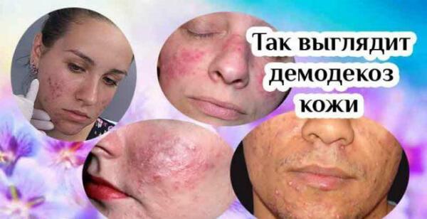Демодекоз кожи