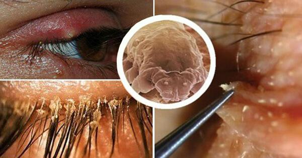 Глазная форма демодекоза