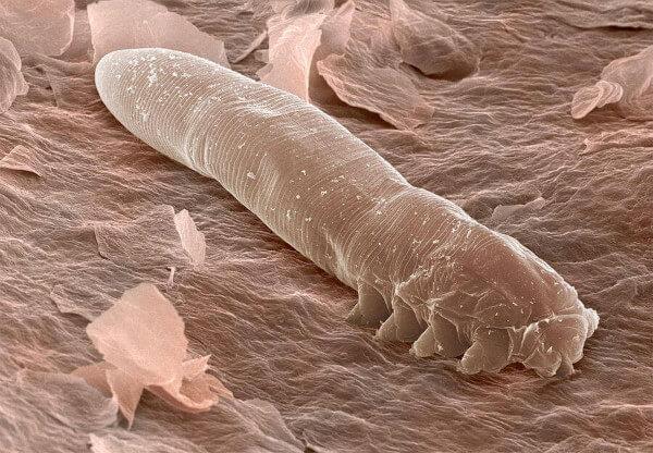 Подкожный клещ под микроскопом