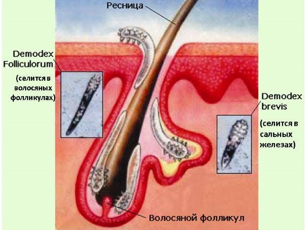 Два вида клеща демодекса