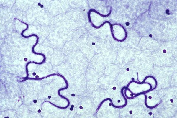 Дирофиллярии