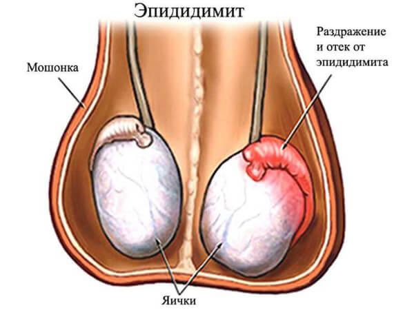 Трихомоназный эпидидимит