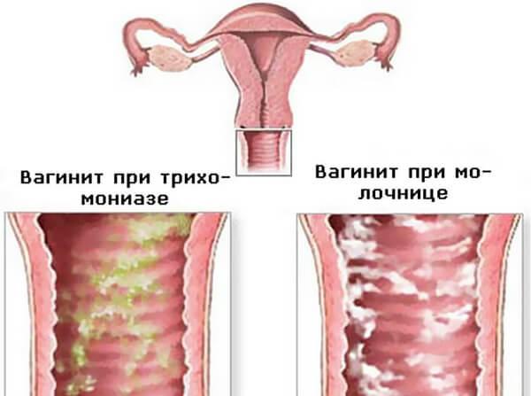 Трихомониаз и молочница