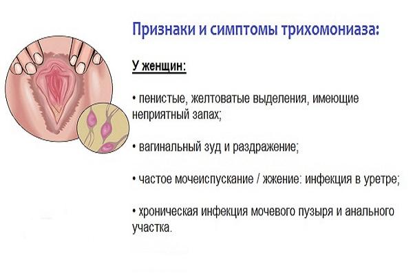Признаки заражения трихомонадами