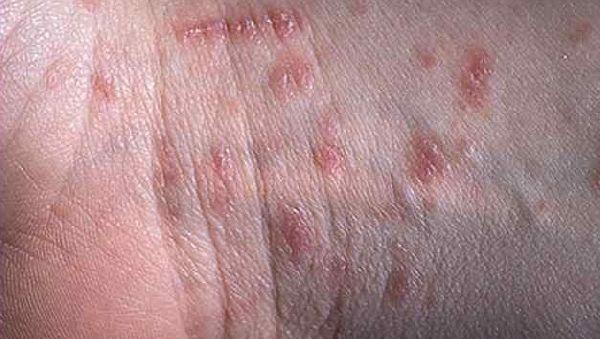 Пораженная чесоткой кожа