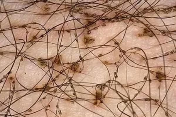 Гниды при лобковом педикулезе