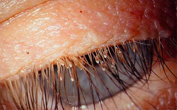 Гниды лобковых вшей