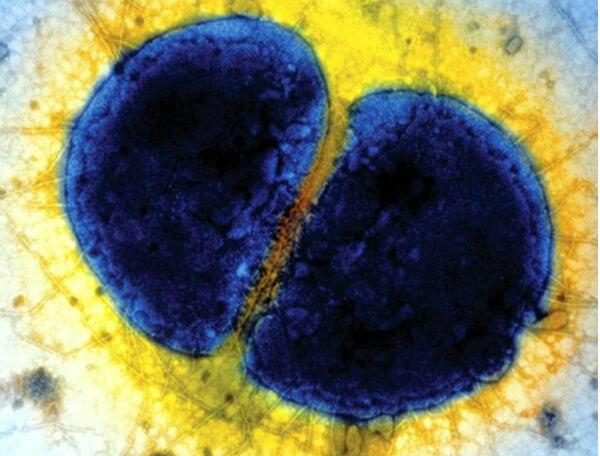 Строение диплококков
