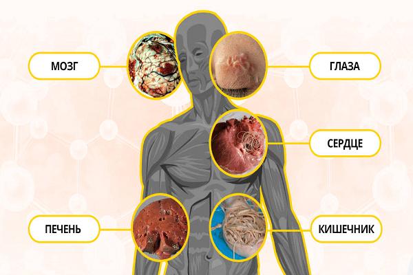 Гельминтозы человека