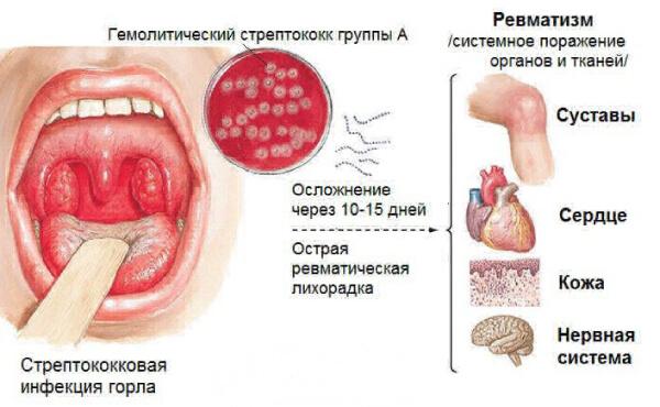 Стрептококк группы А
