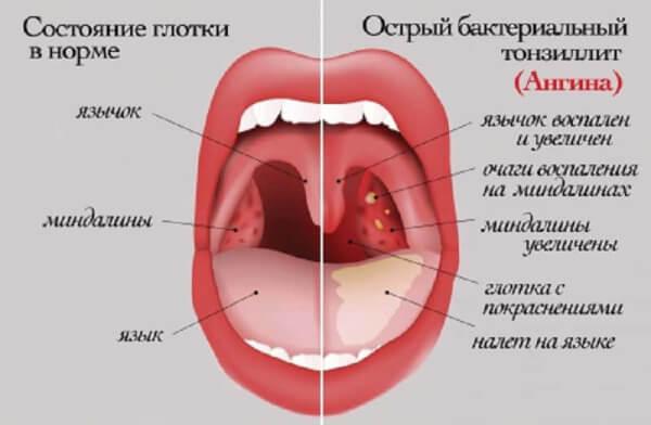 Горло - наиболее частая локализация стрептококка