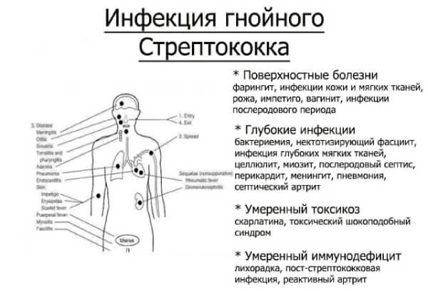 Заболевания, вызываемые стрептококком