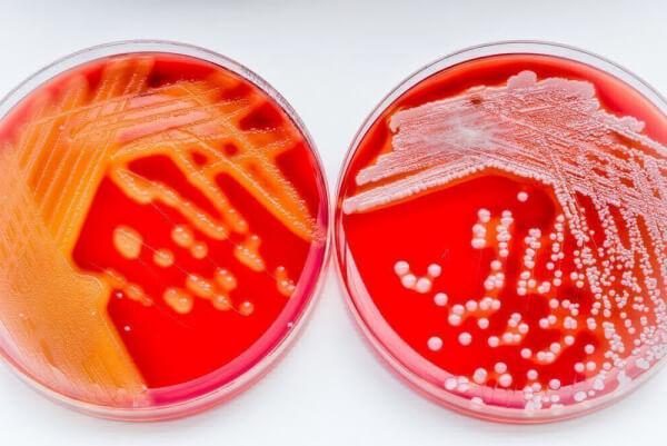 Посев мокроты на стрептококк вириданс