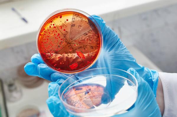 Диагностика стрептококковой инфекции