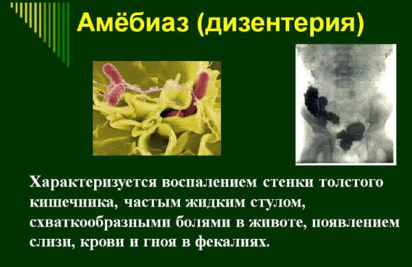 Дизентерийная амеба