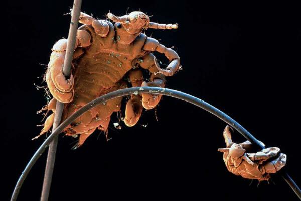 Облигатный паразит - лобковая вошь