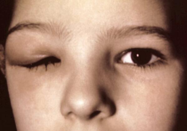 Симптомы гнатостомоза