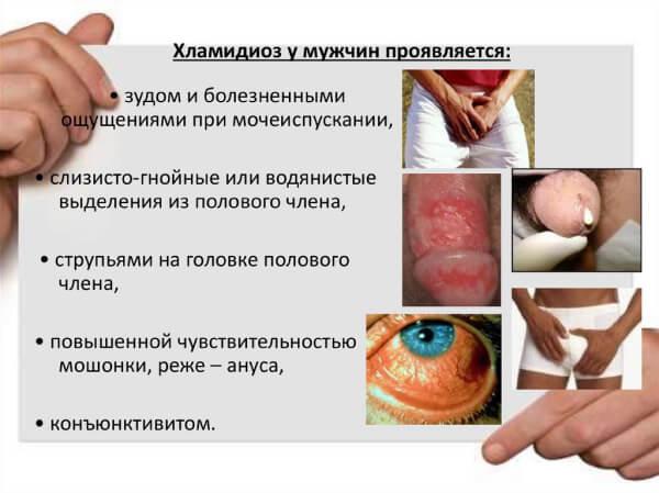 Симптомы хламидиоза у мужчин