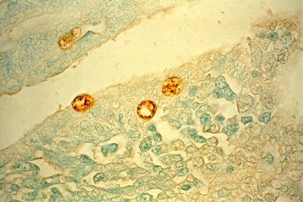 Хламидия трахоматис в мазке