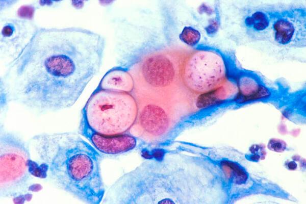 Обнаружены хламидии в мазке