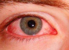 Возбудители хламидиоза и их влияние на организм