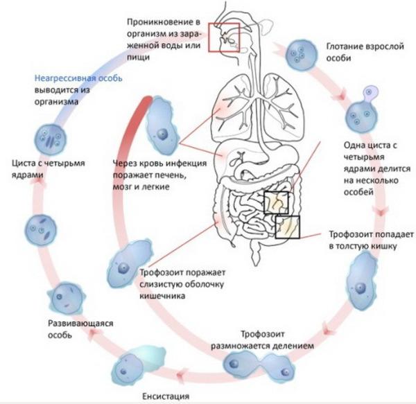 Амебиаз внутренних органов