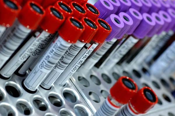 ИФА-тест эффективный метод диагностики при эхинококкозе