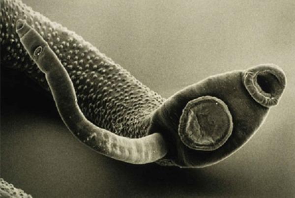 Меры по профилактике энтеробиоза в детском саду, школе и дома