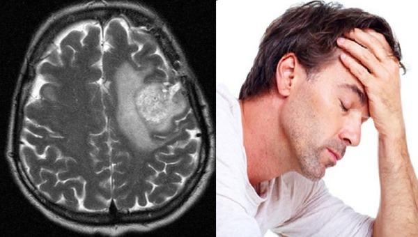 Поражения мозга личинками токсокар
