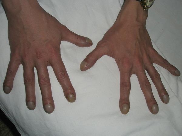 Синдром барабанных палочек